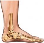 Take Care of Flat Feet